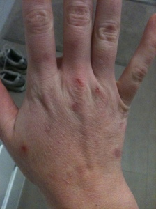 I fill shelves at a department store for a living so my hands often get cut and scratched when opening boxes or hanging things on racks. This then gives me blemishes to pick at. My hands are badly scarred from years of endless picking.
